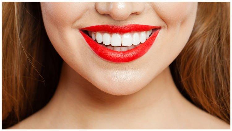 牙黃急救😬編輯實試家用藍光美白牙齒神器+用後感!另推介2款高效去黃產品